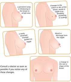 Breast Cancer Check-up and Screening for Women