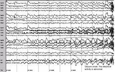 eeg activity during seizure