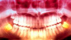 Vinculan radiografías dentales con riesgo de tumor cerebral