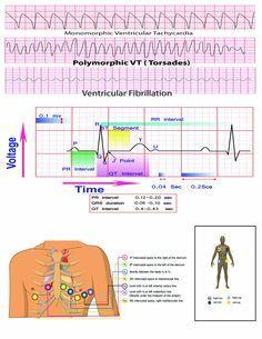 12 Lead EKG Pocket Card: APRN World: 9781941004067: Amazon.com: Books Ekg Interpretation, Medical Mnemonics, Medical Office Design, Medical Laboratory Science, Nursing School Notes, Nursing Tips, Critical Care, Pocket Cards, Nurse Life
