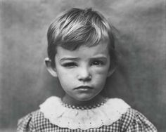 """Sally Mann - This photo is actually called """"The Bee Sting"""" and this is one of her own children after a mishap with a bee. This particular photo received a lot of controversy as did many of the nude photos of her children."""