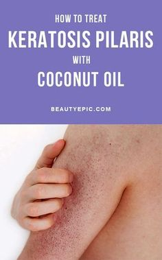 How To Treat Keratosis Pilaris With Coconut Oil