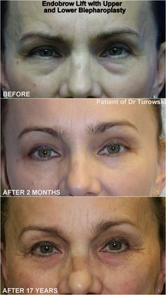 Eyelid Surgery, Movie Posters, Movies, Film Poster, Films, Movie, Film, Movie Theater, Film Posters
