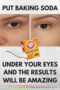 PUT BAKING SODA UNDER YOUR EYES AND THE RESULTS WILL BE AMAZING