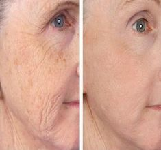 Under Eye Wrinkles, Neck Wrinkles, Prevent Wrinkles, Facial Treatment, Skin Treatments, Prévenir Les Rides, Laser Skin Tightening, Thigh Workouts, Beauty Hacks