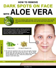 How to Use Aloe Vera to Remove Dark Spots on Face? Aloe Vera for Dark Spots on Face :Aloe vera contains anthra-quinone, which removes dead skin cells naturally. This leads to the brightening of the skin and Dark Spots On Legs, Red Spots On Face, Brown Spots, Anti Aging, Aloe Vera For Skin, Aloe For Face, Aloe Vera On Face, Skin Care Routine For 20s, Beauty Tips For Face