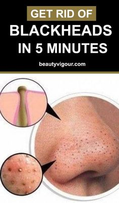 Get Rid Of Blackheads In 5 Minutes #Blackheads #skincare #beauty #beautytips