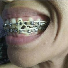 Types Of Braces, Braces Girls, Braces Colors, Brace Face, Perfect Teeth, Rubber Bands, Beautiful Smile, Headgear, Dentistry