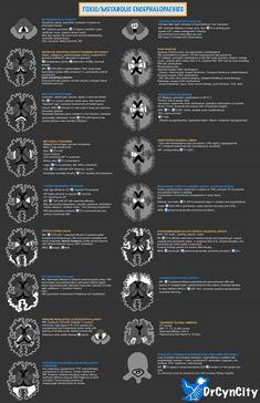 Anatomy Bones, Brain Anatomy, Human Anatomy And Physiology, Medical Anatomy, Radiology Student, Radiology Imaging, Medical Radiography, Neurological Assessment, Mri Brain