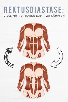 Dein Bauch will nach der Schwangerschaft nicht weggehen? Vielleicht steckt eine Rektusdiastase dahinter. Wir verraten dir, was du dagegen tun kannst. #schwangerschaft #schwanger #rektusdiastase #schwangerschaftsbauch #mama #mütter #mutter