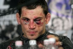 Jon Fitch after his fight with GSP at UFC 87