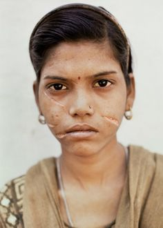 Due to insufficient dowry this young girl's husband lacerated her face with a razor blade, Gwalior, India,