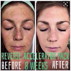 Rodan + Fields Reverse Regimen is for the appearance of brown spots, dullness, and discoloration.  60 day money back guarantee.  Message me on Pinterest @ R+Fskincare101 for more info.