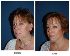 Procedure Performed: Eyelid Surgery Eyelid Surgery, Eyes, Cat Eyes