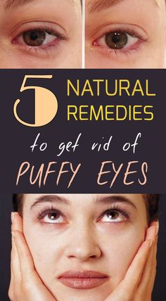 5 natural remedies to get rid of puffy eyes - BeautyTipsZone.com