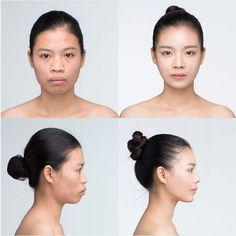 #Banobagi #Plasticsurgery #Cosmeticsurgery #Beauty #Women #Gangnam #Seoul #Korean #Makeover #Life #Health #Faceshape #Faceline #Facecontour #Jaw #Jawline #nose #rhinoplasty #changelife #beautiful #kbeauty