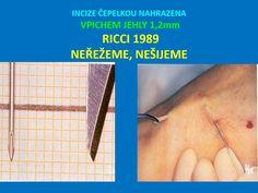 Křečové žíly | Léčba a odstranění křečových žil, Flebologie Surgery