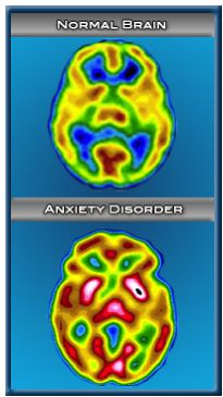 brain scan of person with anxiety scan of brain with anxiety disorder - Look at that and tell me Anxiety disorders aren't real...