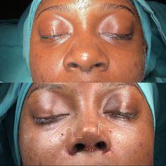 Korean Plastic Surgery, Plastic Surgery Photos, Facial Fillers, Botox Fillers, Black Girl Makeup, Girls Makeup, Ethnic Rhinoplasty, Nose Jobs, Wide Nose