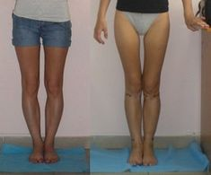 Operative correction of bow legs, knock-knees Genu Varum, Bow Legged Correction, General Anaesthesia, Knock Knees, Go To The Cinema, After Surgery, Mobile Photos, In Cosmetics, Bows