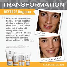 Casey's amazing transformation after just 2 months w/the Rodan + Fields REVERSE Regimen for the appearance of brown spots, dullness, and discoloration.