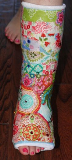 Mod podge and fabric brighten up a leg cast. Mod podge and fabric brighten up a leg cast Ankle Cast, Arm Cast, Broken Foot, Cast Art, Boot Bling, Crutches, Classic Paintings, Artsy, Crafty