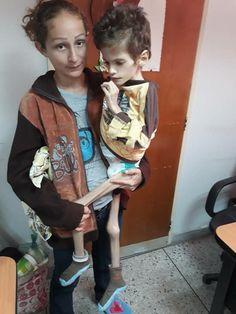 """""""Asi están nuestros niños inocentes en Venezuela . Los estan MATANDO!!! REGIMEN ASESINO Y LADRON. Supuestamente falleció el 10/1/18 en el hospital de la Isabelica #HolodomorEnVenezuela"""""""