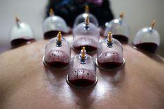 Masaż Hijama -Fibromialgia
