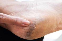 Kattints a képre hogy jobban lásd nagyban! Ankle Pain, Home Remedies, Rings For Men, Heels, Tips, Sandal, Easy, Blog, Heel