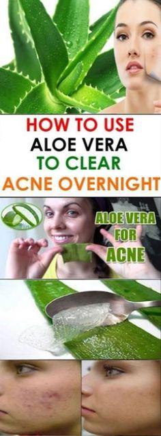 ALOE VERA TO CLEAR ACNE OVERNIGHT #acne #aloevera #clearacne