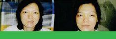 """Obat Penyakit Saraf dan Obat Penyakit Saraf Pada Wajah  """"..Tetapi dalam waktu 2 bulan minum Super Lutein (S Lutena) dan Izumio, Saraf wajahnya pun kembali normal.......""""  http://naturallyplussehat.com/obat-penyakit-saraf-dan-obat-penyakit-saraf-pada-wajah/"""