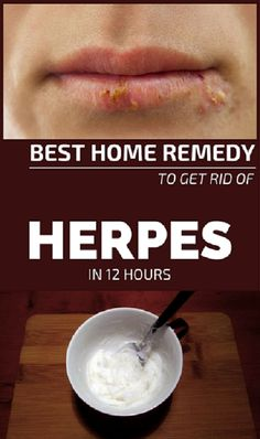 Best Home Remedy To Get Rid Of Herpes In 12 Hours #BestHomeRemedyToGetRidOfHerpesIn12Hours