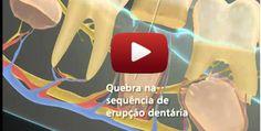 FABULOSO VÍDEO!!! Desenvolvimento da Dentição – Do dente de leite ao permanente.   ORTOBLOG Greetings Images, New Year Greetings, Oral Health, Dentistry, Teeth, Overhead Press, Tooth, Dental