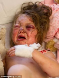 hospital pictures of bruises - Google Search Cuts And Bruises, Hospital Pictures, Real Life, Personal Care, Eyes, Google Search, Beauty, Self Care, Personal Hygiene