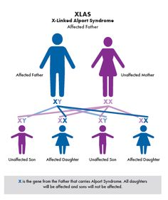 Alport Syndrome Genetics 101: X-Linked.  Part 1 of a 3-part series on understanding basic genetics of this #raredisease and how advances in genetic testing affect knowledge of #AlportSyndrome. #AlportAwareness #Genetics