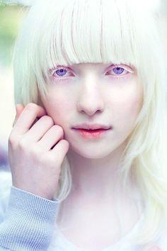 albino fashion models | Nastya Kumarova's fascinating violet eyes.