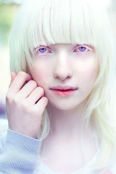 albino fashion models | Nastya Kumarova's fascinating violet eyes.