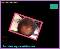 Hair Loss Scalp Pain 173253 - Hair Loss Cure!