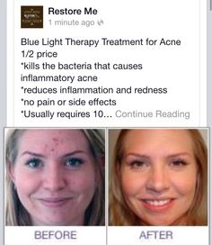 Call Restore Me today for your non-invasive acne treatment 806-676-7778