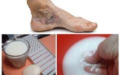 cel mai bun remediu pentru mașinile varicoase de pe picioare