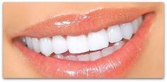 Naturally Whiten Teeth