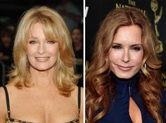 471 Best Plastic Surgery Before And After Images In 2015