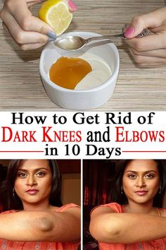 If the dark skin on knees and elbows is bothering you here's how you can rid of it in just 10 days-- learn about the recipe!