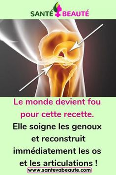 The world is going crazy for this recipe. It heals your knees and immediately rebuilds bones and joints! Bone And Joint, Anti Cellulite, Going Crazy, Soigne, Health Fitness, Healing, World, Celebrities, Summer
