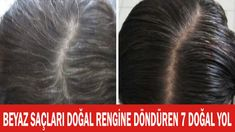 Hair Remedies Start Regrowing Thick, Strong Hair Overnight With Just 3 Ingredients - Who doesn't dream of long hair? Experts believe that approximately of women are losing hair faster than ever. So, today I am going to share you the Stop Grey Hair, Prevent Grey Hair, Grey Hair Home Remedies, Natural Remedies, Herbal Remedies, Black And Grey Hair, White Hair, Premature Grey Hair, Reverse Hair Loss