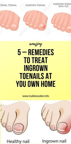 5 – Remedies to Treat Ingrown Toenails at You Own Home Wellness Fitness, Fitness Diet, Health And Wellness, Health Fitness, Yoga Fitness, Health Articles, Health Advice, Diet Drinks, Healthy Drinks
