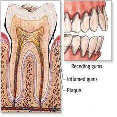 Receding Gums Treatment Tips