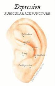 Resultado de imagem para imagens de pontos de auriculoterapia dores reumáticas #acupuncturetreatment