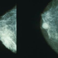 Cancer Prevention: Iodine Treats Breast Cancer the Overwhelming Evidence by Jeffrey Dach MD
