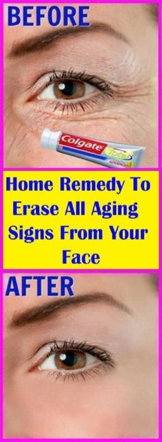 Home Remedy To Erase All Aging Signs From Your Face - Home Technology Ideas Health Remedies, Home Remedies, Natural Remedies, Herbal Remedies, The Beauty Department, Hair Fall Remedy, Face Home, Diy Skin Care, Clip